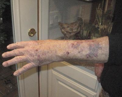 Robert Biggs Arm After Attack By MountainLion